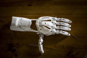 a 3D printed prosthesis of a hand